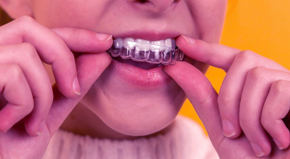 Unknown Facts About Emergency Dental
